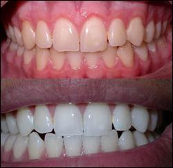 Bottesini Odontologia Www Bottesini Com Br